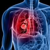 Хроническая обструктивная болезнь лёгких (ХОБЛ / ХОЗЛ)