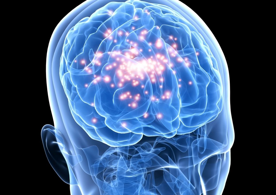 the consequences of epilepsy Temporal lobe epilepsy (tle) is a chronic disorder of the nervous system characterized by recurrent, unprovoked focal seizures that originate in the temporal lobe of the brain and last about one or two minutes.
