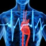 Аритмия сердца
